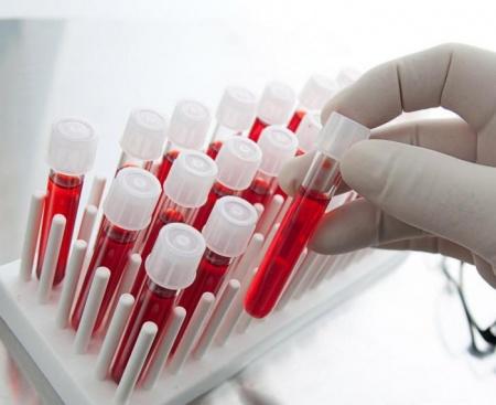 Зачем нужен общий анализ крови